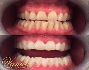 Lovelite Laser teeth Whitening