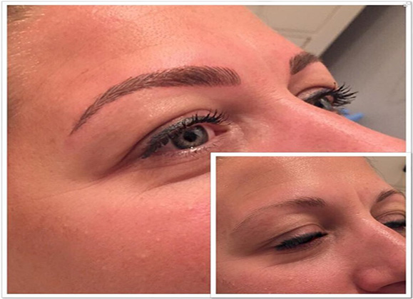 Epi Brow Treatments Worthing