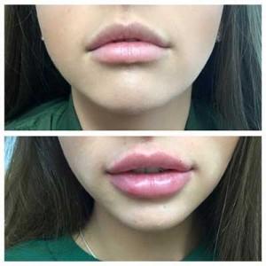 Lip Fillers 2