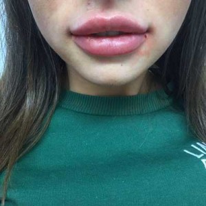 Lip Fillers 4