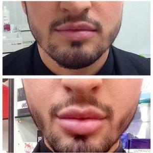Lip Fillers 6